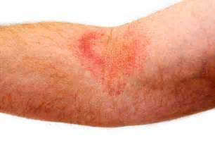 joint pain herpes women picture 15