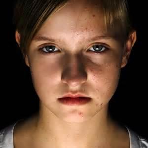 adolescent acne picture 17