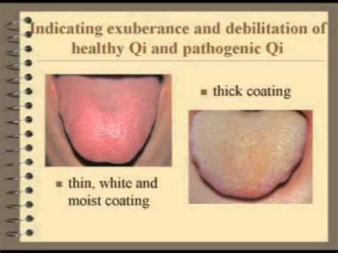 what does a yeast infection looks like - picture 11