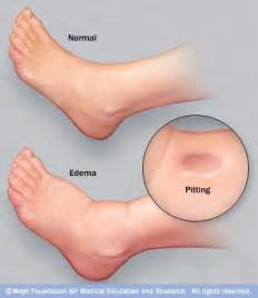 how to reduce swelling of swollen urethra from picture 5
