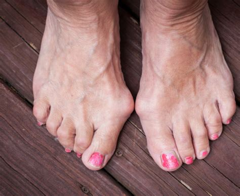 are you put to sleep for bunion surgery picture 10