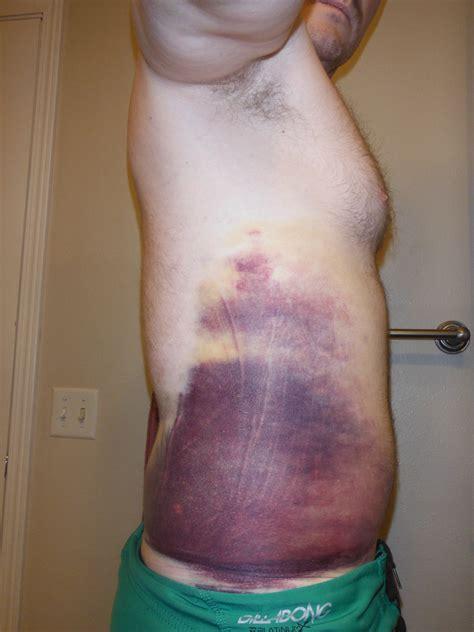 bladder ca treatment picture 7