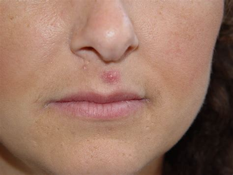 cystic acne picture 1