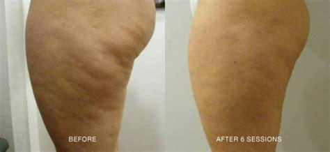 remove cellulite mountain home arkansas picture 17