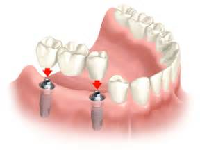 single tooth stay plate picture 7