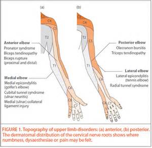 sepsis weakness joint pain picture 2