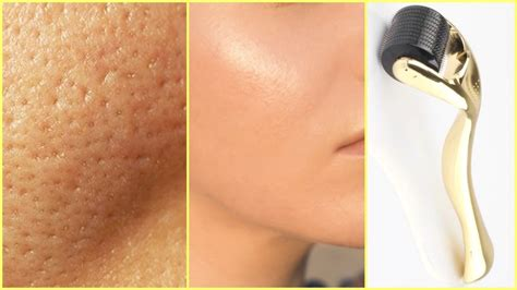 how to get rid of acne picture 2