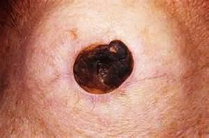 acne vs blackheads picture 2