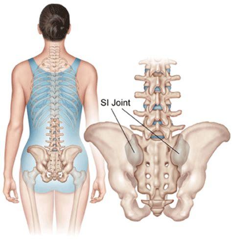 sacroiliac joint dysfunction picture 7