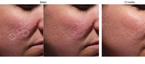 is sculptra good for acne scaring picture 20