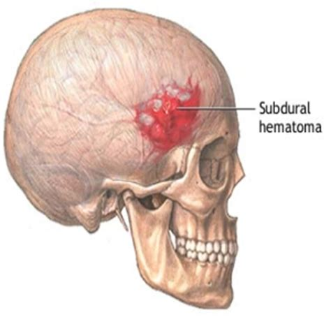 causes of blood clot in brain picture 7