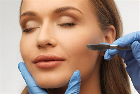 dermaplanning for the skin picture 2