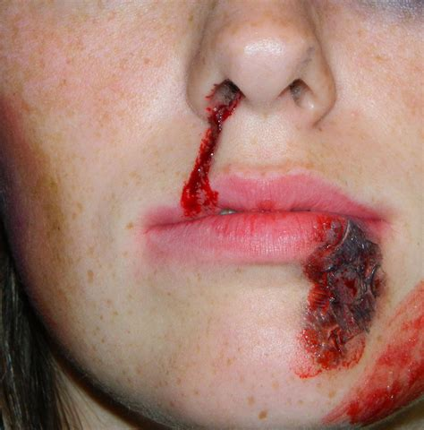 busted lip photos picture 1