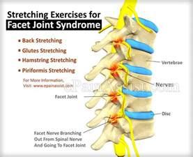 facet joint disease picture 7