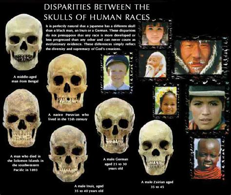determines skin color picture 10
