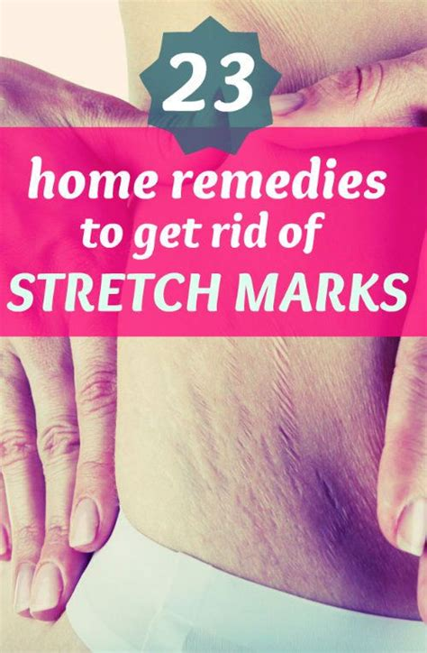how can i get rid of my stretch marks for free picture 9