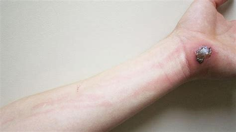 fatigue lethargy skin rash picture 13