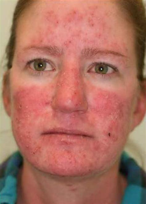rosacea at 50 picture 3
