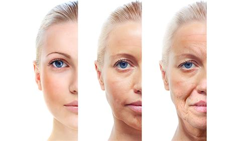 aged skin picture 3