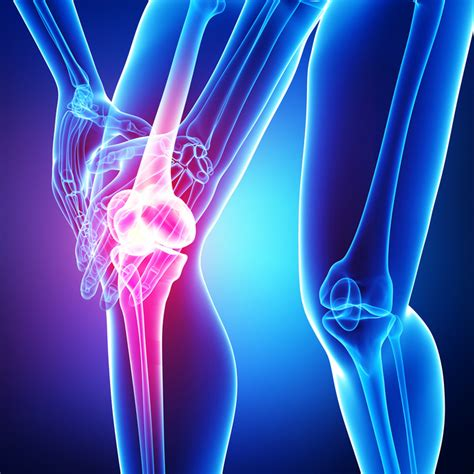 knee joint - sports picture 9