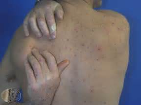 itching symptoms related to a liver problem picture 1