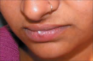 pimple l growths on the lips picture 13