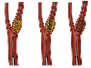 skin boils and artery stents picture 21
