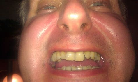 bad teeth picture 11