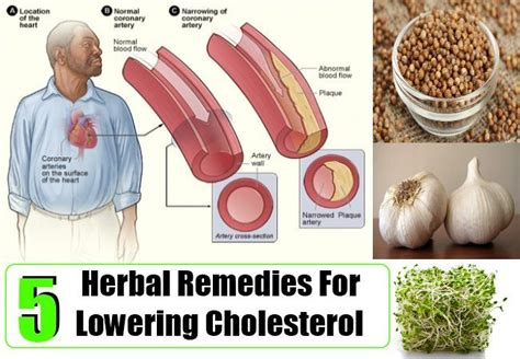 Cholesterol lowering herbs picture 6