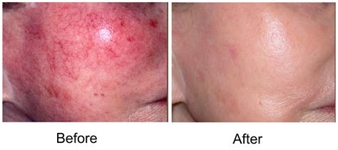 cosmetic skin care vein removal virginia picture 1