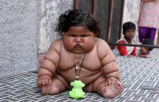 loose skin on former obese child picture 4
