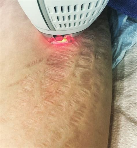 stretch mark icd 9 picture 2