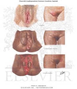 photos of genital warts female picture 9