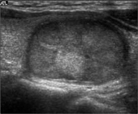 heterogenereous thyroid picture 7