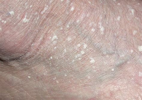 warts with white patches picture 2