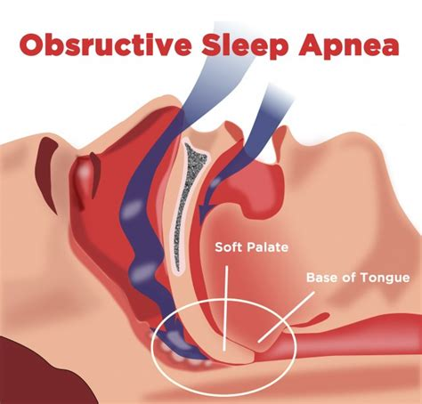 obstructive sleep apnea picture 13