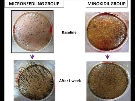 is prolexil better than minoxidil picture 1