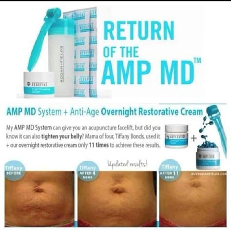 rodan+fields amp pro for stretch marks? picture 2