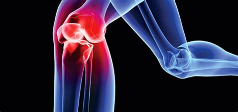 sports - knee joint picture 3
