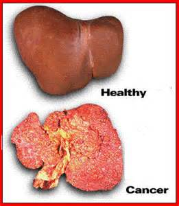 liver cancer blog picture 3