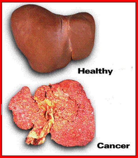 all symptoms of liver cancer picture 9