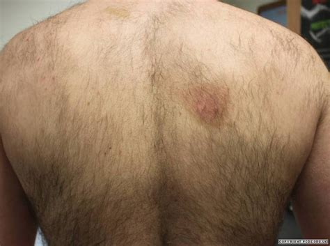 statins herpes simplex picture 13