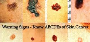 signs and symptoms of thyroid cancer picture 5