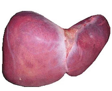 white h liver picture 2