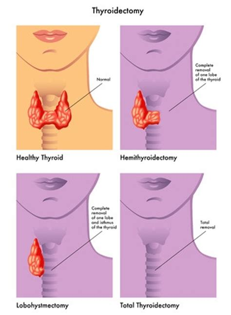 after subtotal thyroidectomy picture 5