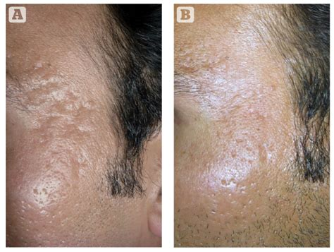 needling for acne scarring picture 5