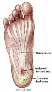 plantar picture 5
