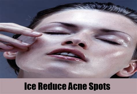 dry ice on acne picture 14
