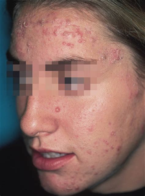 acne support picture 15