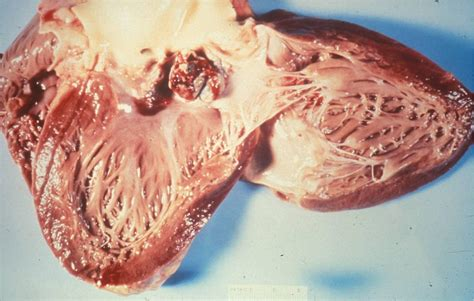 Non bacterial endocarditis procalcitonin picture 14